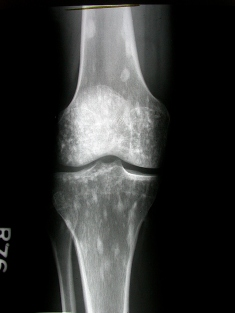 Note the white spots around the knee joint in this x-ray which represent the small bone islands inside the medullary cavity, characteristic of osteopoikilosis.